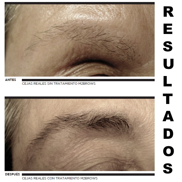 resultados m2 brows beauté